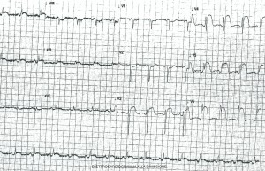 Figura 3 - Elettrocardiogramma alla dimissione