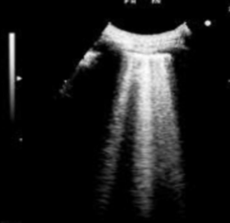 """Figura 5 - Esempio ecografico di """"comete polmonari"""""""
