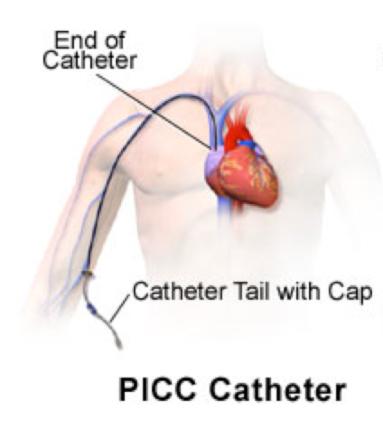Figura 1- A PICC Catheter  Un catetere PICC