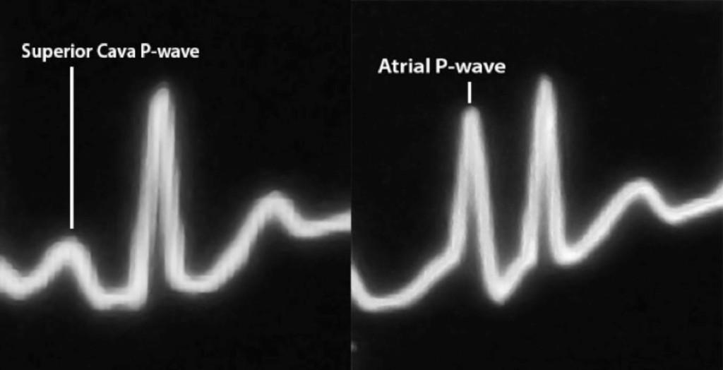 Figura 2 - Difference between superior cava and endoatrial conformation of endocavitary ECG P-waves  Differenza tra la forma dell'onda P endocavitaria in vena cava superior ed in atrio destroy