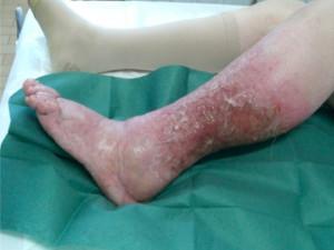 Figura 5 - Ulcera venosa linfatica