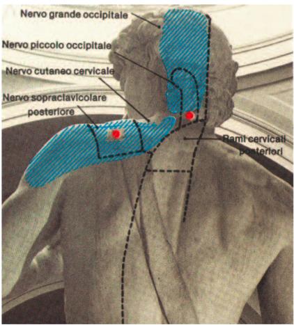 Figura 1 - È visibile il punto trigger dello splenio del capo.