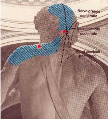 Figura 2 - Punti trigger dello SCM, del trapezio e dell'elevatore della scapola.